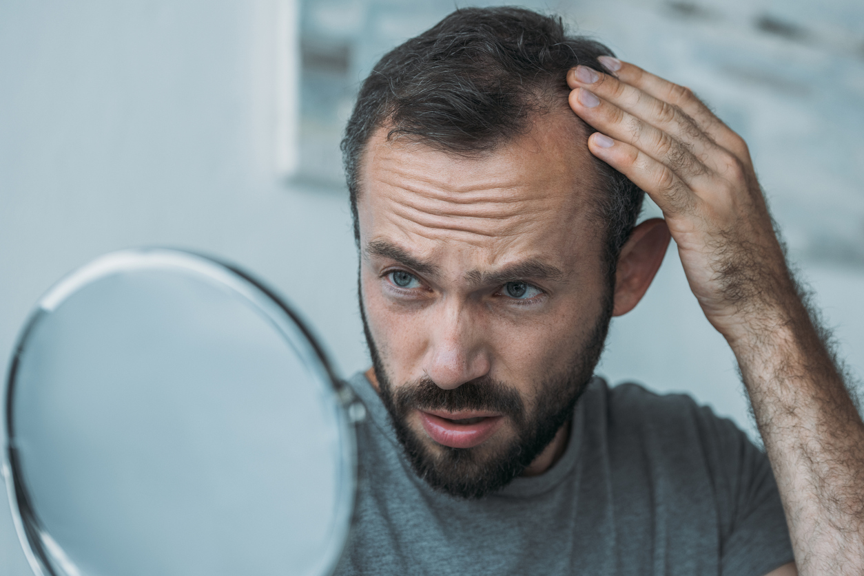 Dealing with Hair Loss? 5 Effective Solutions You Must Try